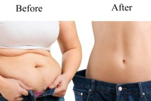 how to get rid of fupa after weight loss
